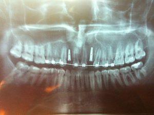 narrow implanti slika 2 (Copy)