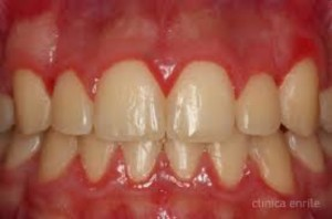 Gingivitis (Copy)