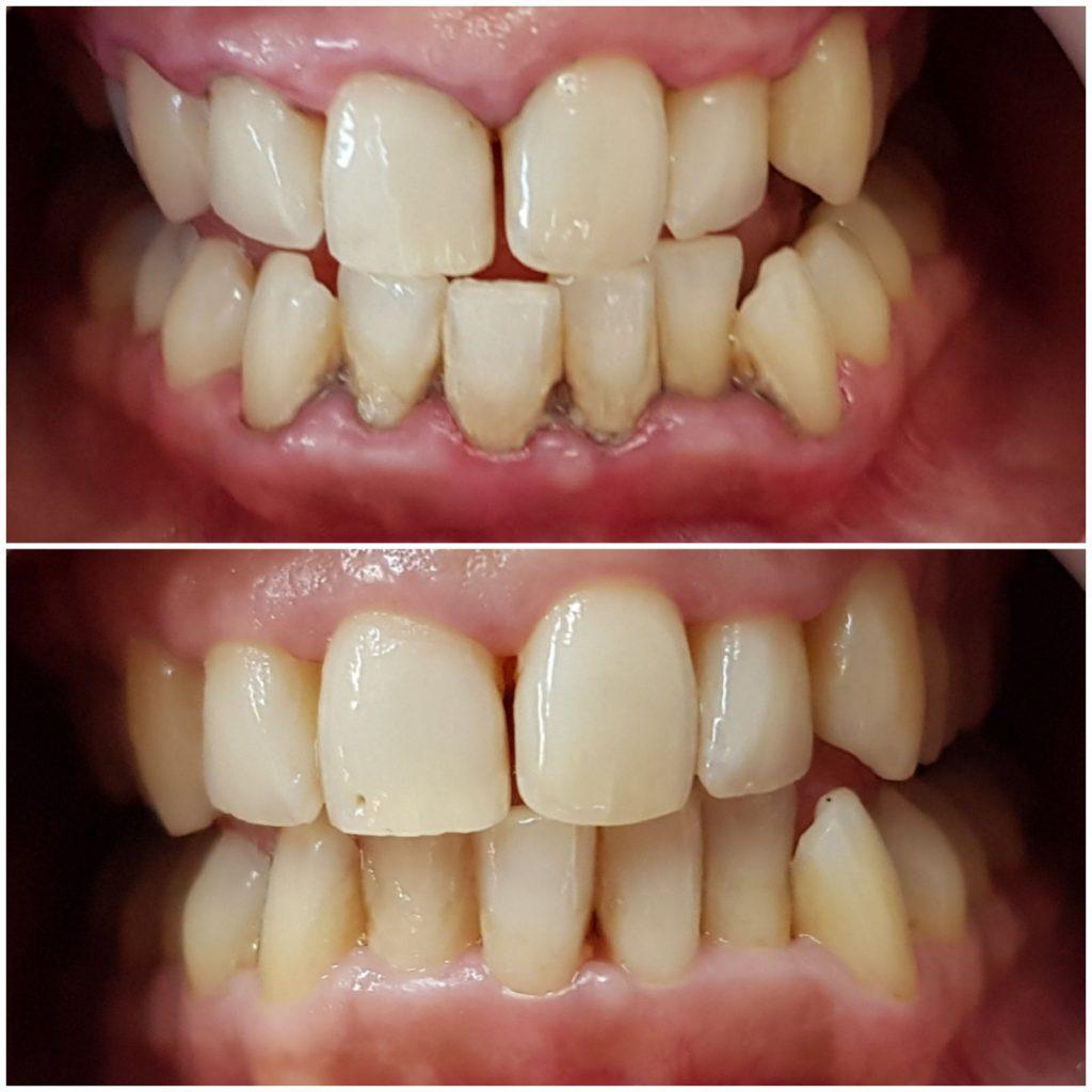 Uklanjanje zubnog kamenca