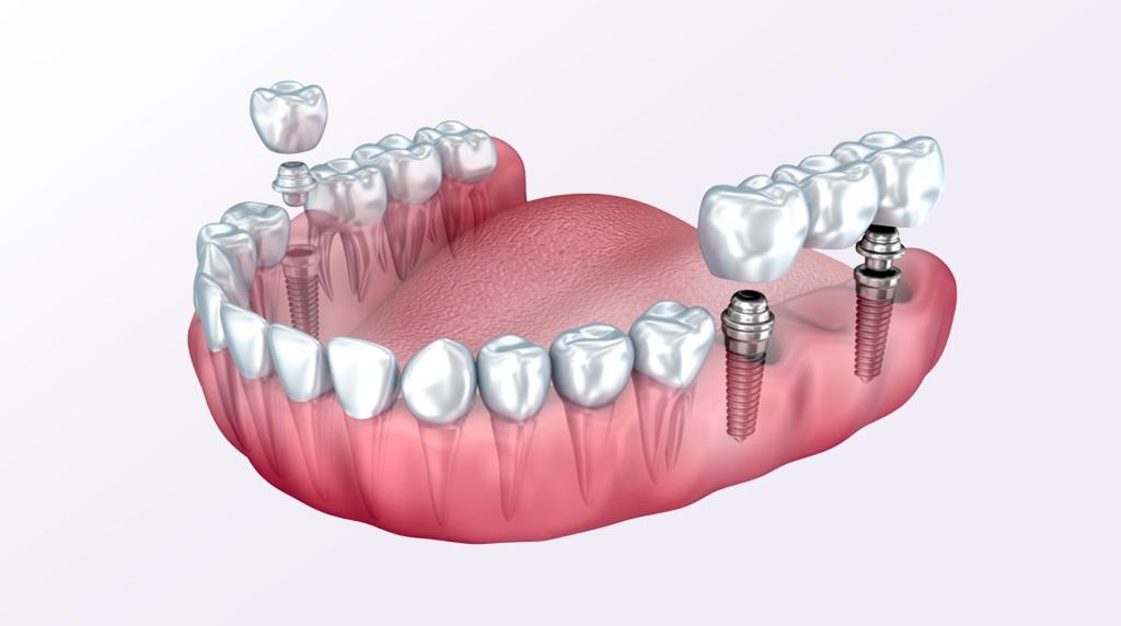 Zubni Implanti Stomatoloska ordinacija Dental Jovanovic
