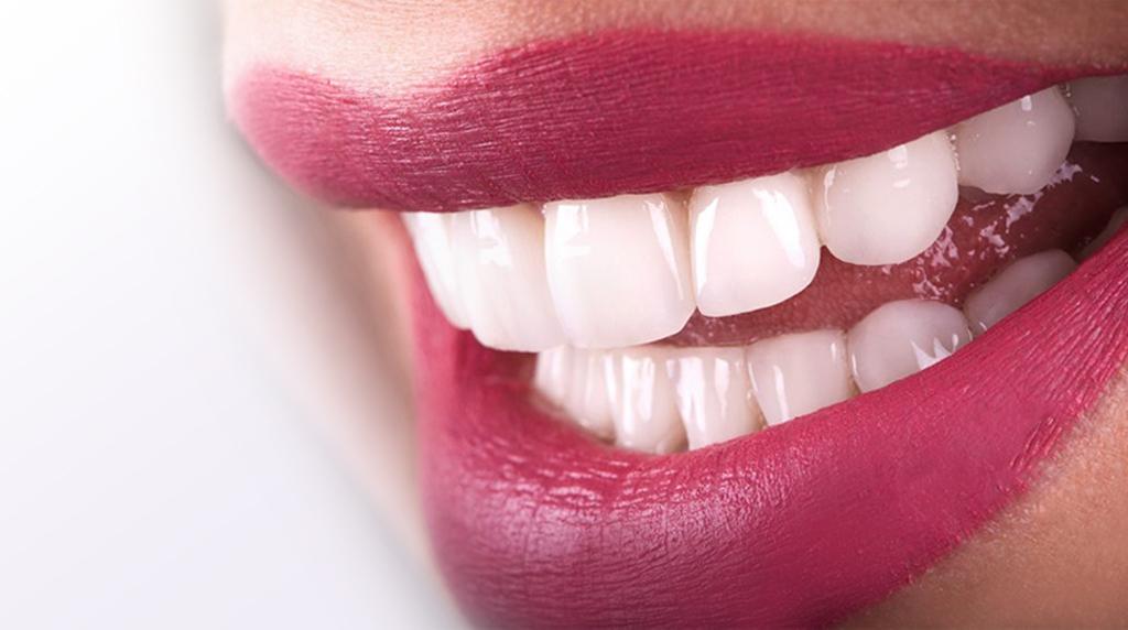 Hollywood Smile Stomatoloska ordinacija Dental Jovanovic